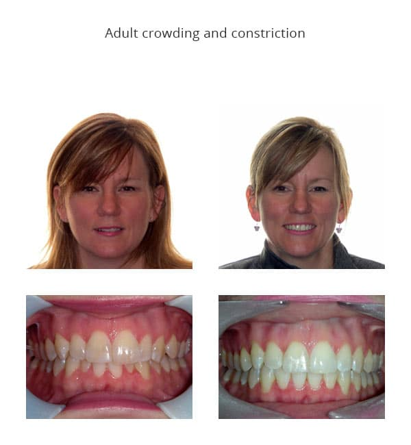Jaymie Before and After Dionne Orthodontics Tecumseh ON