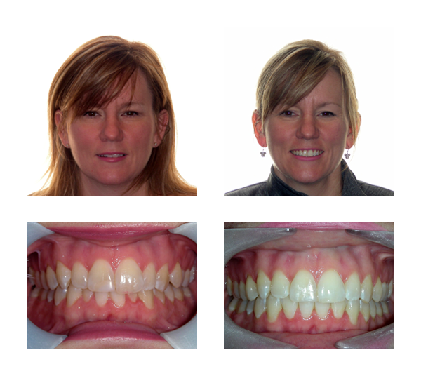 Jamyie-Before-After-Dionne Orthodontics